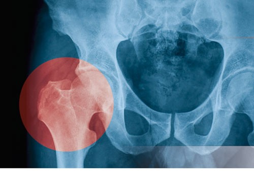 SUMMIT ORTHOPEDIC SPECIALISTS <br /> folder & patient flyers
